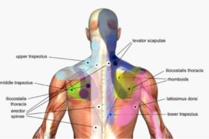 Trigger Point Injections in Boise, Idaho